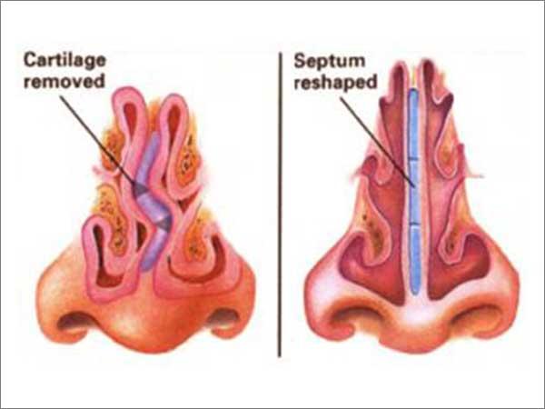 Turbinectomy & Septoplasty