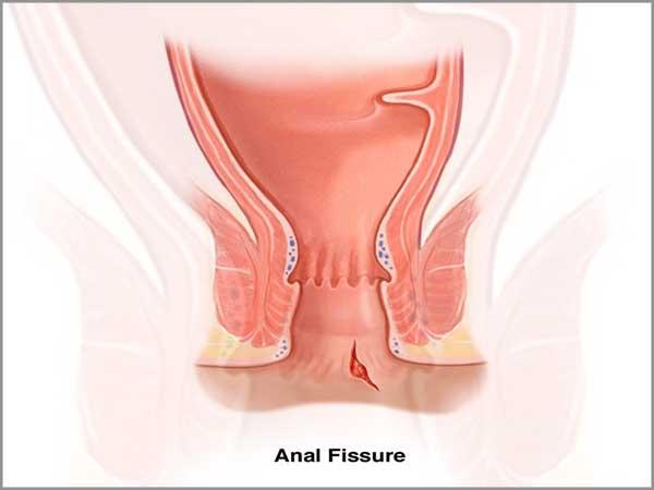 fissurectomy width=