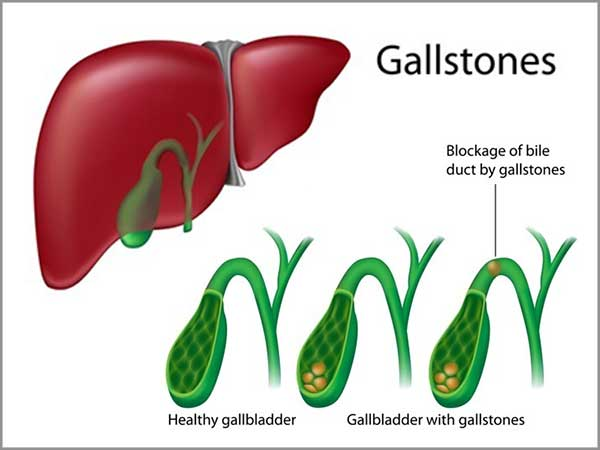 gallbladder disorders and gallstone pancreatitis