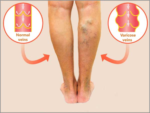 varicose veins stripping